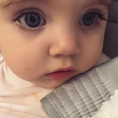 Bác sĩ tq phản đối chiêu cắt lông mi trẻ sơ sinh - 1