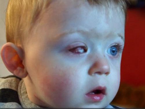 Bé 18 tháng tuổi hỏng 1 mắt vì máy bay đồ chơi - 1
