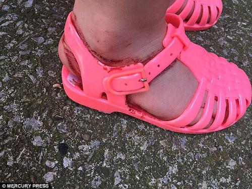 Bé 2 tuổi máu chảy đầm đìa vì đôi dép được bán phổ biến - 2