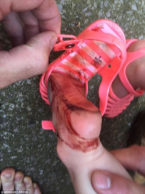 Bé 2 tuổi máu chảy đầm đìa vì đôi dép được bán phổ biến - 3