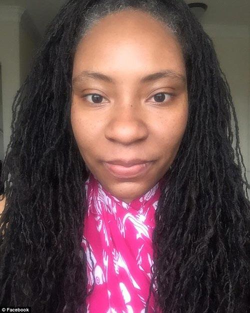 Cô gái biến dạng khuôn mặt vì dị ứng thuốc nhuộm tóc - 2