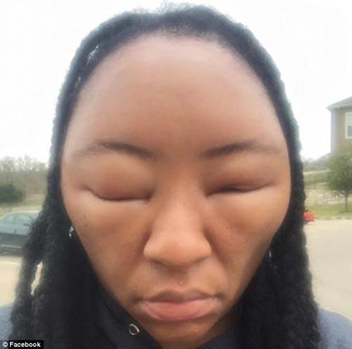 Cô gái biến dạng khuôn mặt vì dị ứng thuốc nhuộm tóc - 3