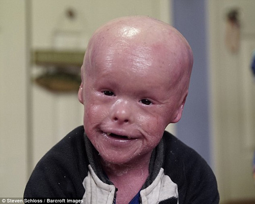 Xót xa cậu bé mắc phải căn bệnh lạ về da