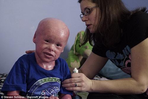 Xót xa cậu bé mắc phải căn bệnh lạ về da - 2