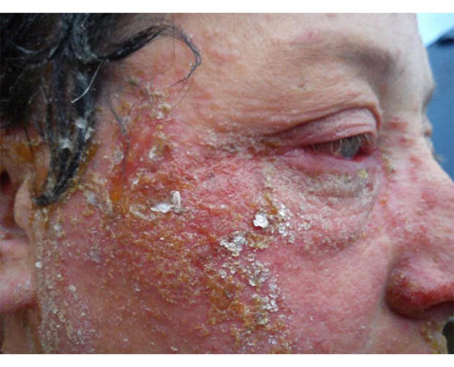 Khuôn mặt biến dạng rùng rợn sau khi nhuộm tóc