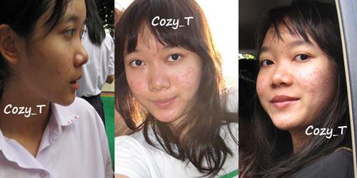 Màn thay đổi đáng kinh ngạc của thiếu nữ thái mặt mụn - 5