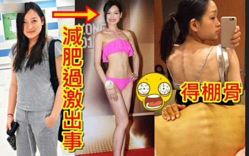 Thí sinh hoa hậu hong kong nhịn ăn gầy như bộ xương - 1