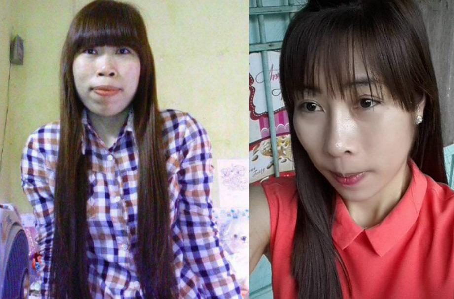 2 cô gái miền bắc đổi đời nhờ xóa chàm chữa hô - 3