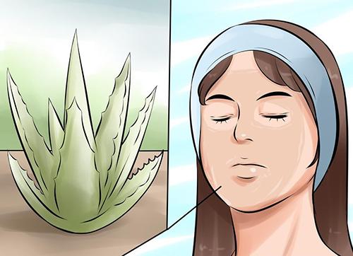 5 giải pháp điều trị hiệu quả làn da cháy nắng