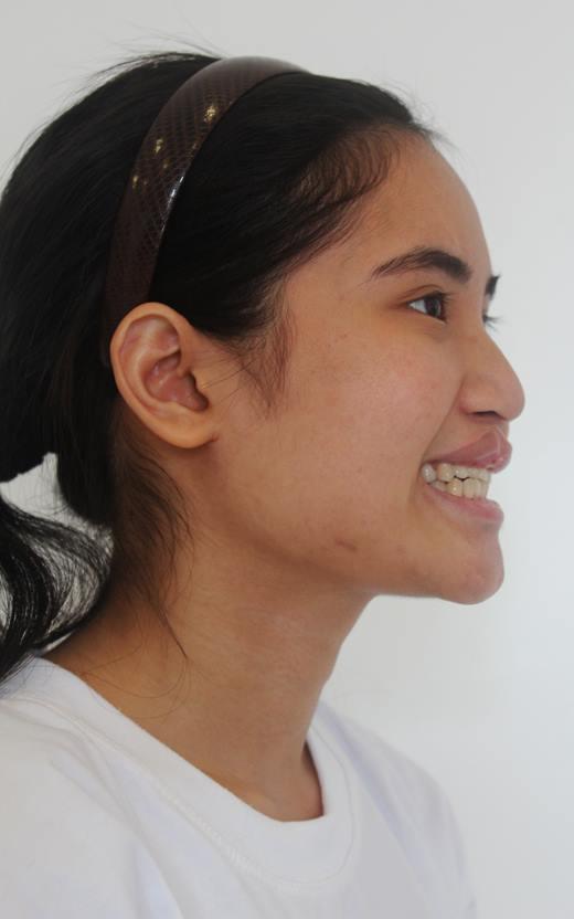 Cô gái mặc cảm về ngoại hình đổi đời nhờ phẫu thuật thẩm mỹ - 2