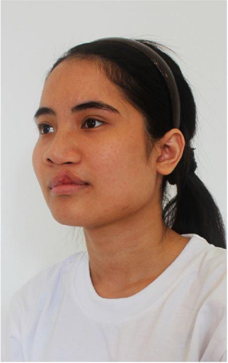 Cô gái mặc cảm về ngoại hình đổi đời nhờ phẫu thuật thẩm mỹ - 3