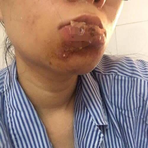 Xót xa cô gái quảng ninh phải cắt bỏ môi sau khi tiêm chất làm đầy - 3