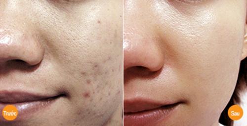 2 cách trị sẹo thâm trên da không hề tốn kém từ nhánh gừng - 9
