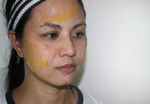 3 loại mặt nạ giúp bạn chặn đứng nám tàn nhang không lo tái phát - 3