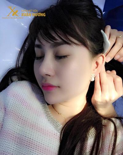 9x hà thành sở hữu dáng mũi đẹp như mơ sau ca phẫu thuật