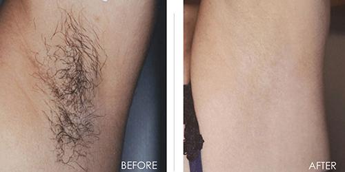 Bất ngờ vì công dụng triệt lông không đau không rát của nước chanh - 6